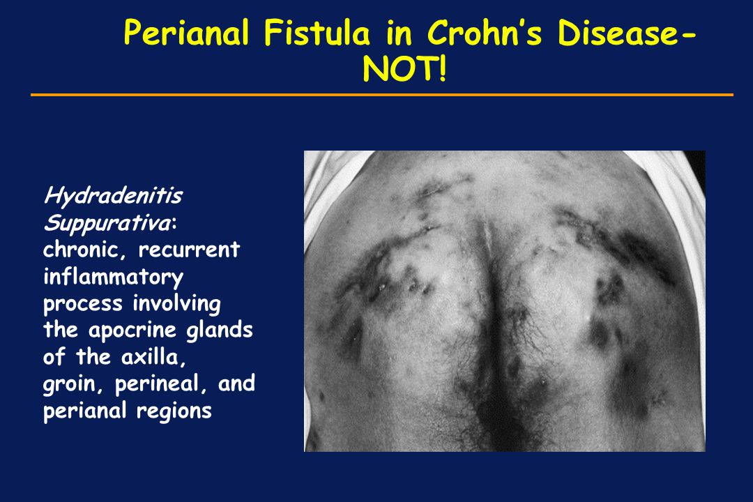 Perianal Fistula in Crohn's Disease- NOT! Hydradenitis Suppurativa: chronic, recurrent inflammatory process involving the apocrine glands of the axill