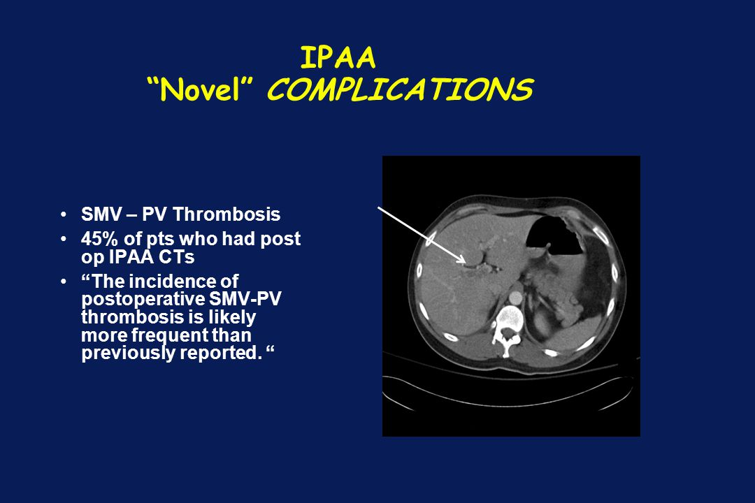 """IPAA """"Novel"""" COMPLICATIONS SMV – PV Thrombosis 45% of pts who had post op IPAA CTs """"The incidence of postoperative SMV-PV thrombosis is likely more fr"""
