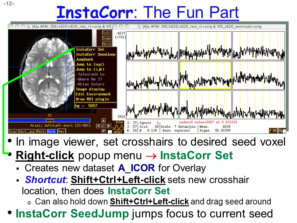 –12– InstaCorr : The Fun Part In image viewer, set crosshairs to desired seed voxel Right-click popup menu  InstaCorr Set  Creates new dataset A_ICOR for Overlay  Shortcut: Shift+Ctrl+Left-click sets new crosshair location, then does InstaCorr Set o Can also hold down Shift+Ctrl+Left-click and drag seed around InstaCorr SeedJump jumps focus to current seed