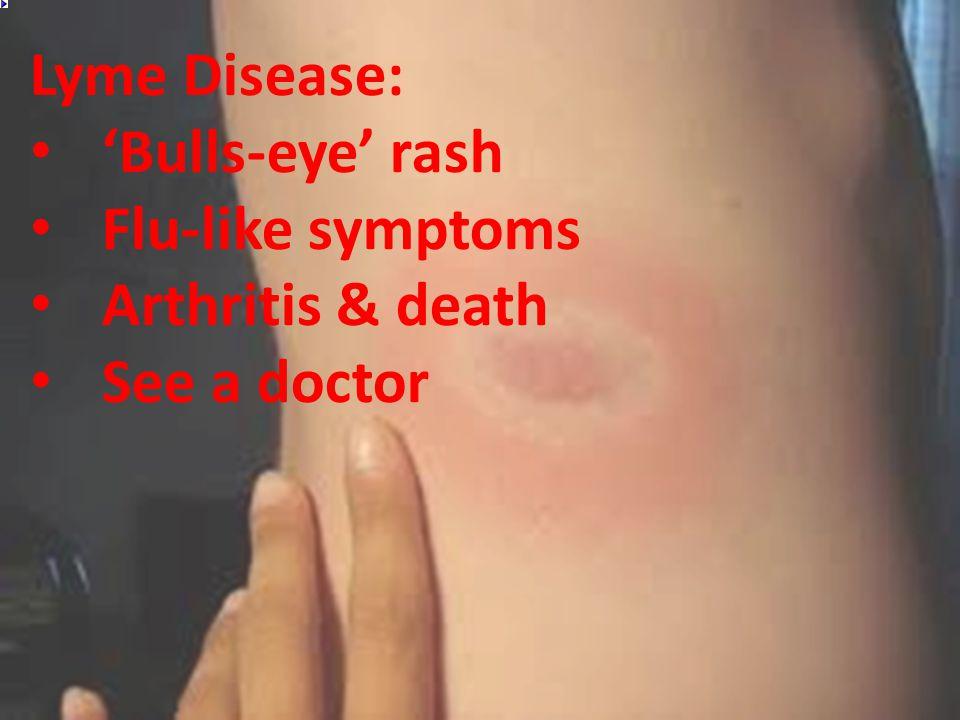 Lyme Disease: 'Bulls-eye' rash Flu-like symptoms Arthritis & death See a doctor