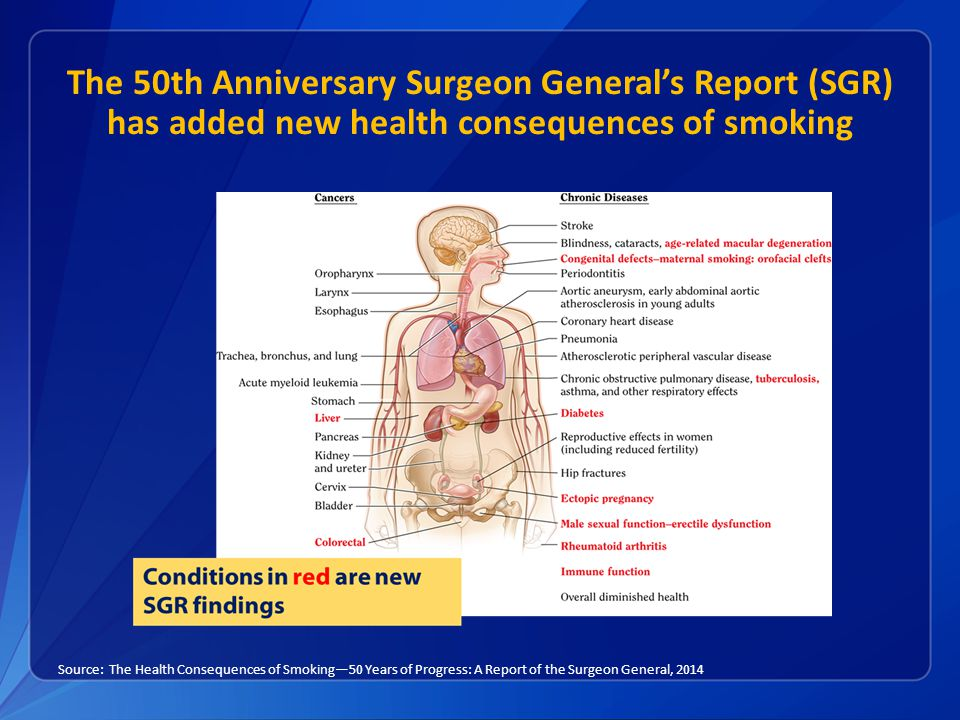 The 50th Anniversary Surgeon General's Report (SGR) has added new health consequences of smoking Source: The Health Consequences of Smoking—50 Years of Progress: A Report of the Surgeon General, 2014