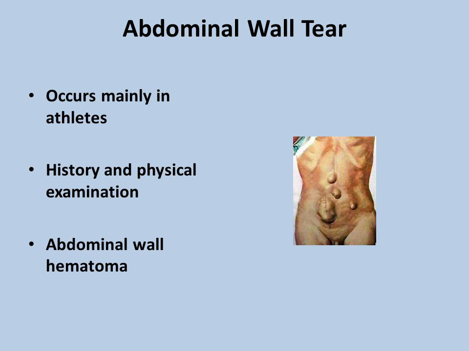 Abdominal Wall Tear Occurs mainly in athletes History and physical examination Abdominal wall hematoma