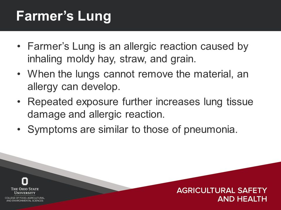Farmer's Lung Farmer's Lung is an allergic reaction caused by inhaling moldy hay, straw, and grain.