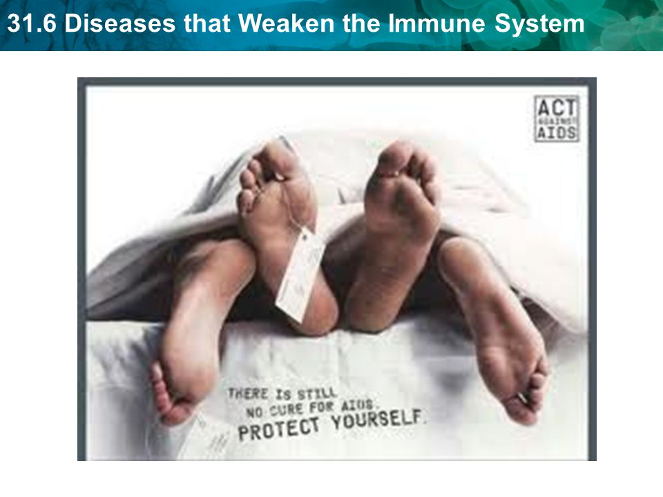31.6 Diseases that Weaken the Immune System