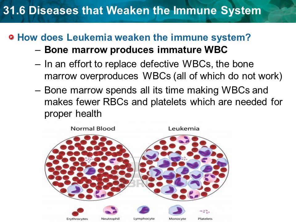 31.6 Diseases that Weaken the Immune System How does Leukemia weaken the immune system.