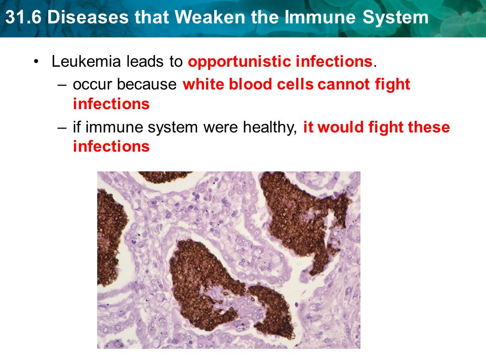 31.6 Diseases that Weaken the Immune System Leukemia leads to opportunistic infections.