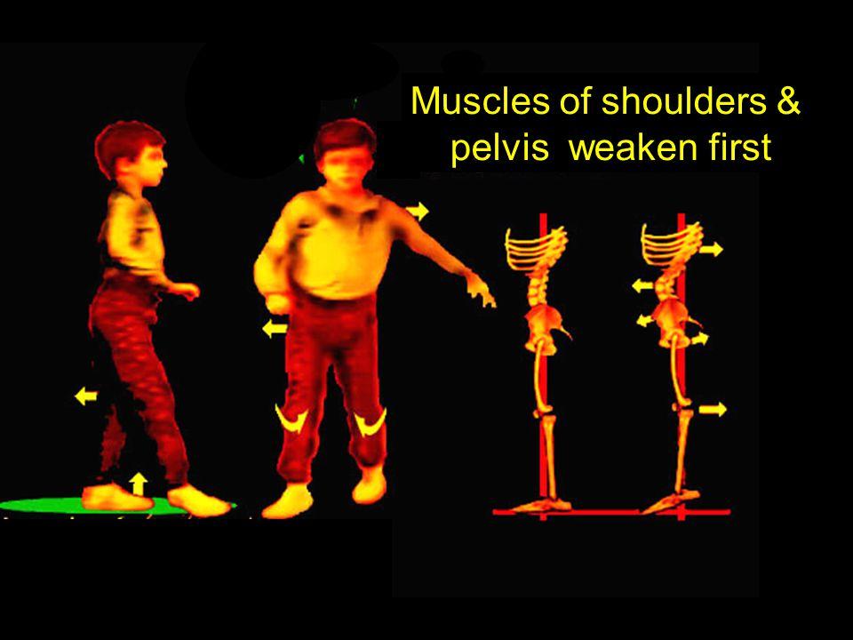 Muscles of shoulders & pelvis weaken first