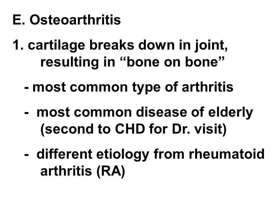 "E. Osteoarthritis 1. cartilage breaks down in joint, resulting in ""bone on bone"" - most common type of arthritis - most common disease of elderly (sec"