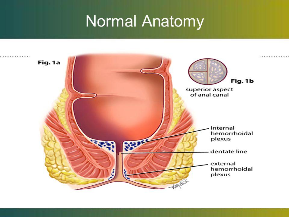 Typical Hemorrhoid Symptoms Internal Hemorrhoids 1.chronic intermittent bright red bleeding with bowel movements.