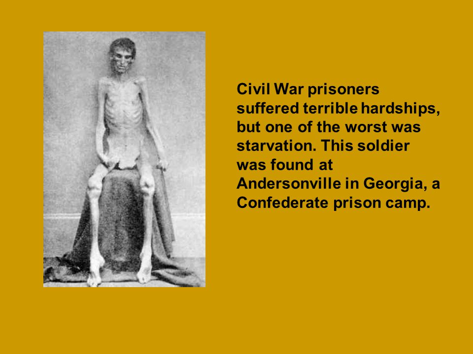 Civil War prisoners suffered terrible hardships, but one of the worst was starvation. This soldier was found at Andersonville in Georgia, a Confederat