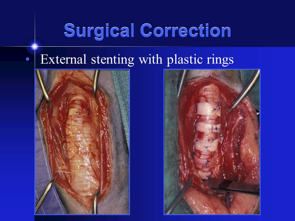 Surgical Correction External stenting with plastic rings