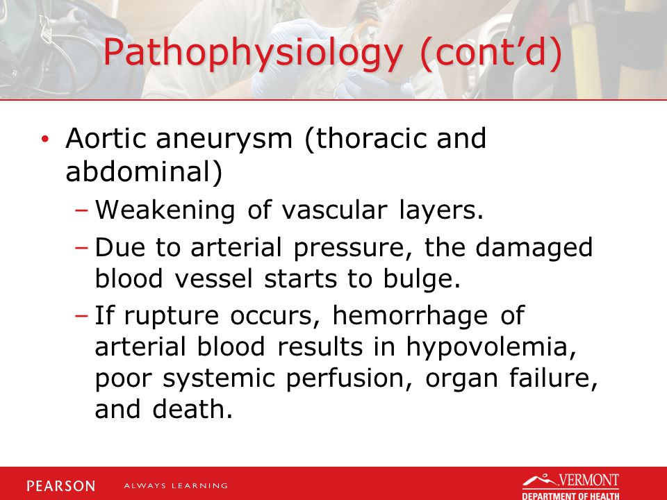 Pathophysiology (cont'd) Aortic aneurysm (thoracic and abdominal) –Weakening of vascular layers. –Due to arterial pressure, the damaged blood vessel s