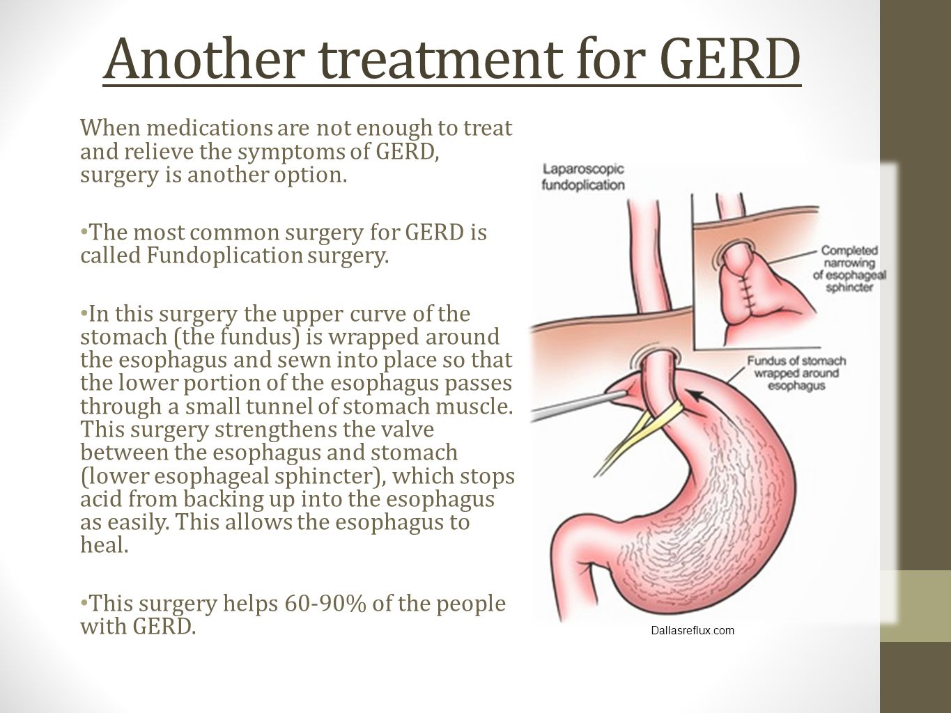 Another treatment for GERD When medications are not enough to treat and relieve the symptoms of GERD, surgery is another option. The most common surge