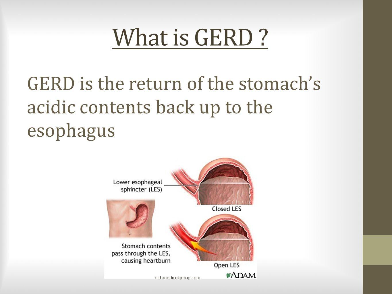 What is GERD .