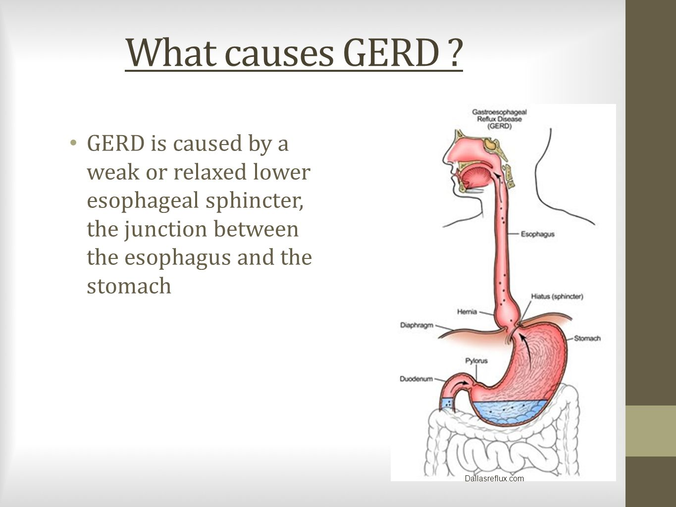 What causes GERD .