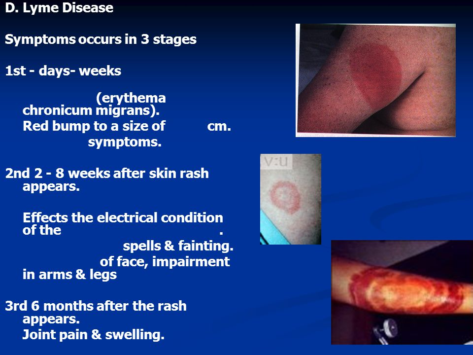 D. Lyme Disease Symptoms occurs in 3 stages 1st - days- weeks (erythema chronicum migrans).