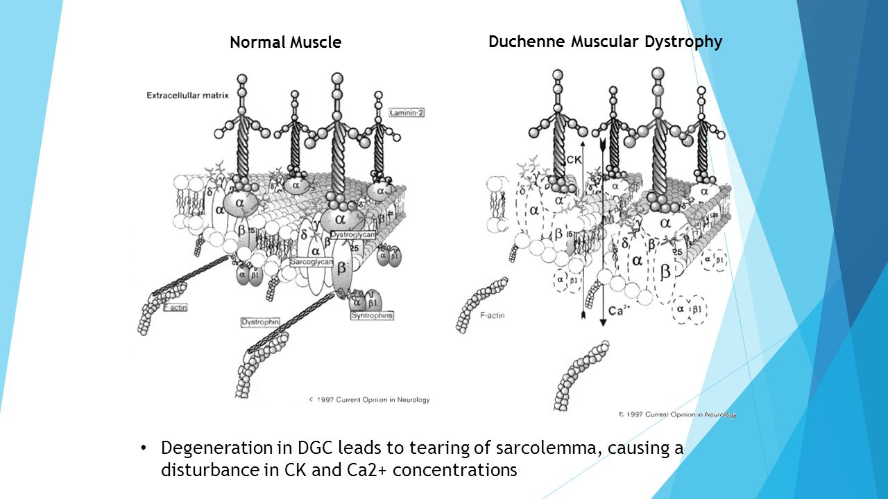 Normal Muscle Duchenne Muscular Dystrophy Degeneration in DGC leads to tearing of sarcolemma, causing a disturbance in CK and Ca2+ concentrations