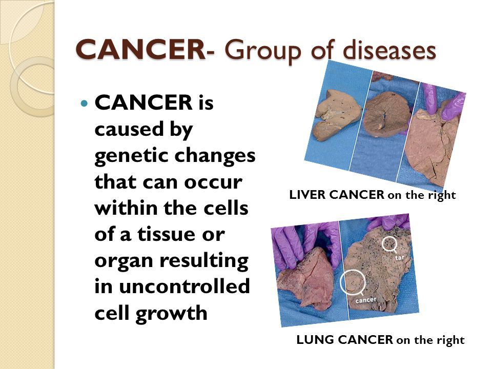 CANCER- Group of diseases CANCER is caused by genetic changes that can occur within the cells of a tissue or organ resulting in uncontrolled cell grow