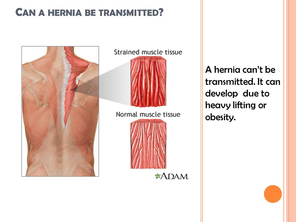 C AN A HERNIA BE TRANSMITTED . A hernia can't be transmitted.