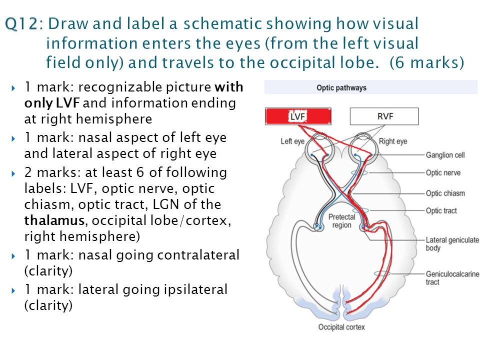  1 mark: recognizable picture with only LVF and information ending at right hemisphere  1 mark: nasal aspect of left eye and lateral aspect of right