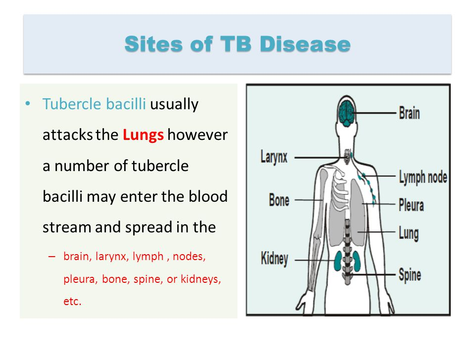 Sites of TB Disease Tubercle bacilli usually attacks the Lungs however a number of tubercle bacilli may enter the blood stream and spread in the – bra
