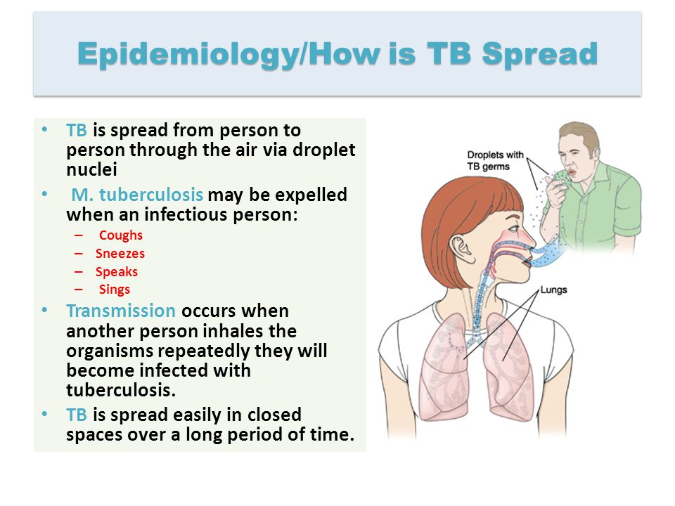 Epidemiology/How is TB Spread TB is spread from person to person through the air via droplet nuclei M. tuberculosis may be expelled when an infectious