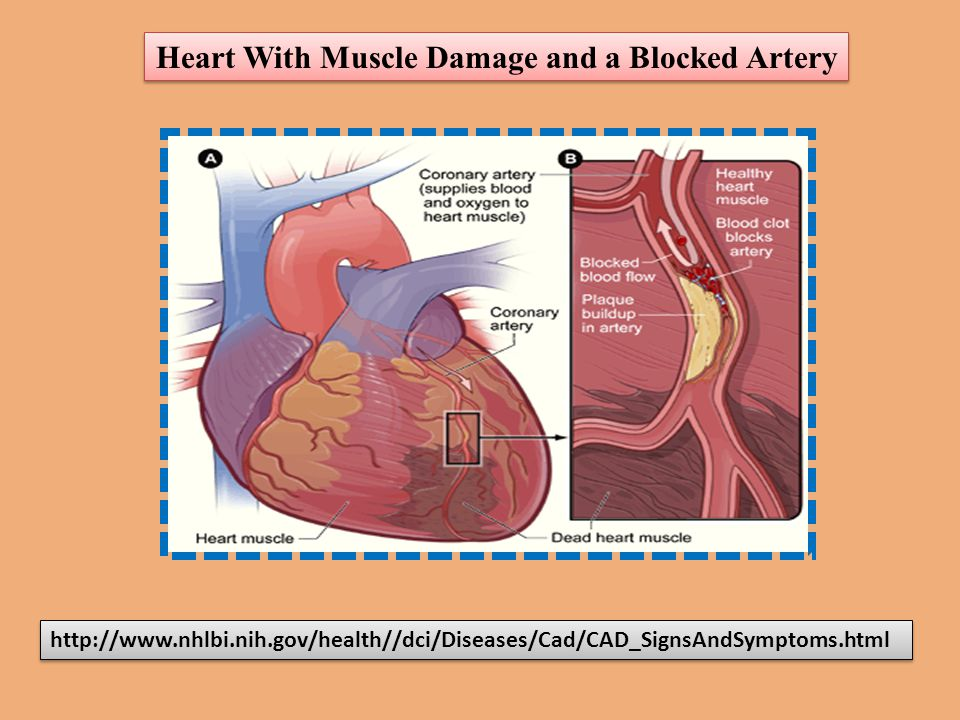 http://www.nhlbi.nih.gov/health//dci/Diseases/Cad/CAD_SignsAndSymptoms.html Heart With Muscle Damage and a Blocked Artery