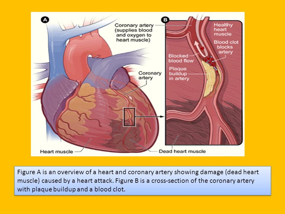 Figure A is an overview of a heart and coronary artery showing damage (dead heart muscle) caused by a heart attack.