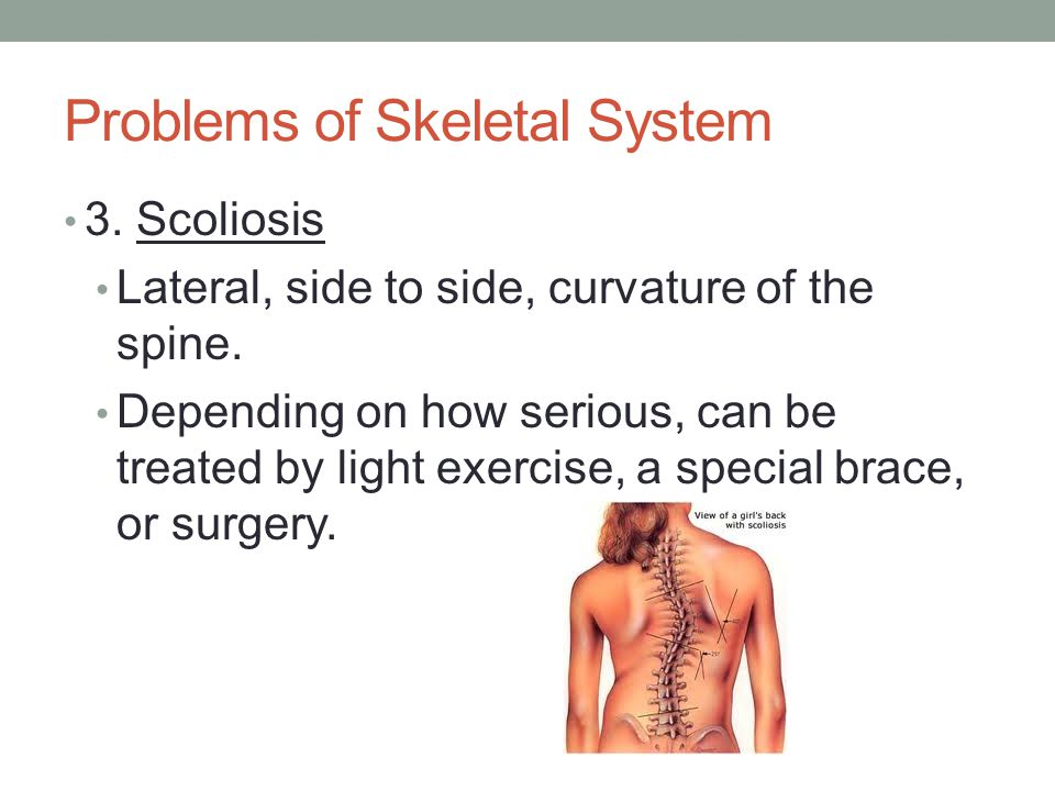 Problems of Skeletal System 3. Scoliosis Lateral, side to side, curvature of the spine. Depending on how serious, can be treated by light exercise, a