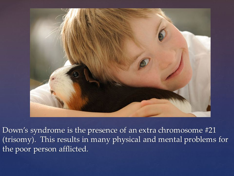 Down's syndrome is the presence of an extra chromosome #21 (trisomy).