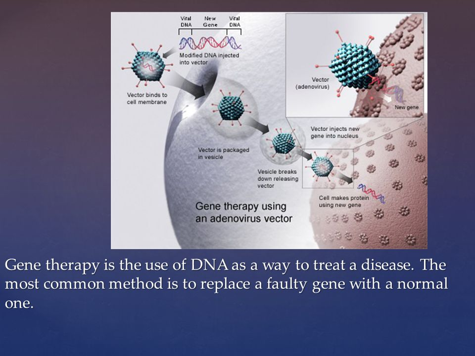 Gene therapy is the use of DNA as a way to treat a disease.