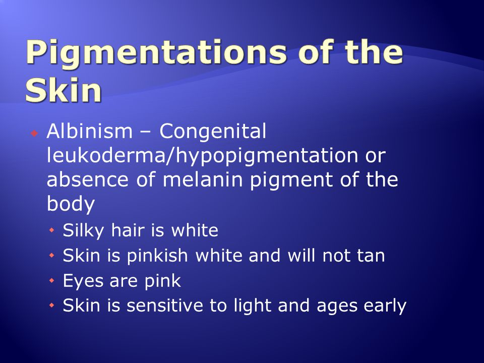 Albinism – Congenital leukoderma/hypopigmentation or absence of melanin pigment of the body  Silky hair is white  Skin is pinkish white and will n