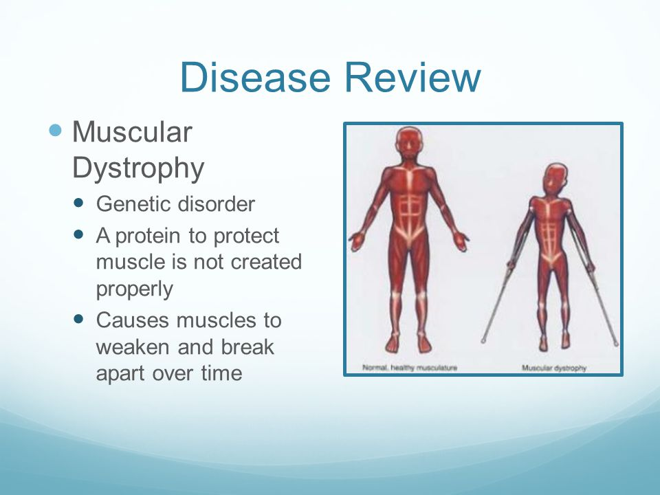 Disease Review Muscular Dystrophy Genetic disorder A protein to protect muscle is not created properly Causes muscles to weaken and break apart over time