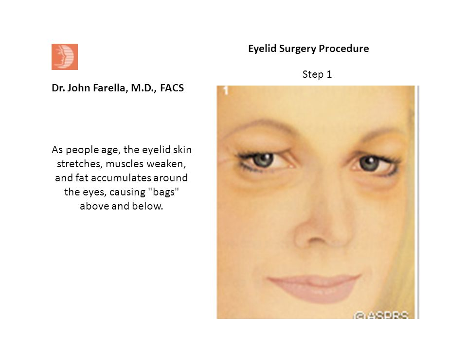 Eyelid Surgery Procedure As people age, the eyelid skin stretches, muscles weaken, and fat accumulates around the eyes, causing bags above and below.