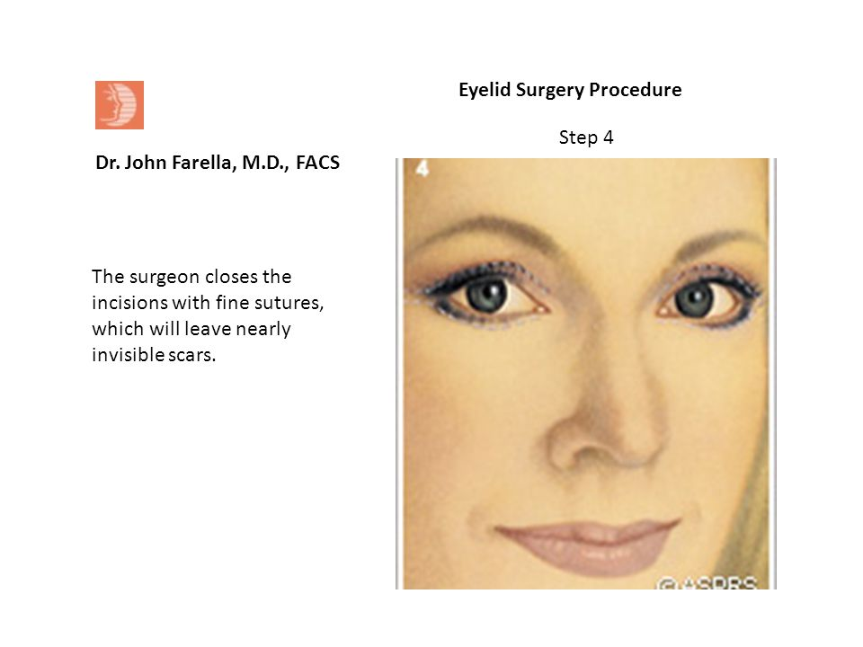 Dr. John Farella, M.D., FACS Eyelid Surgery Procedure The surgeon closes the incisions with fine sutures, which will leave nearly invisible scars. Ste