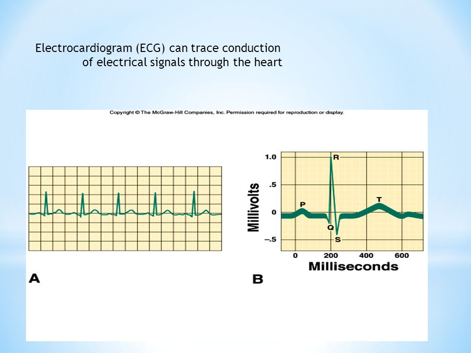 Electrocardiogram (ECG) can trace conduction of electrical signals through the heart