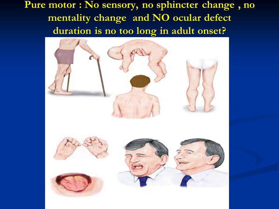 Pure motor : No sensory, no sphincter change, no mentality change and NO ocular defect duration is no too long in adult onset?