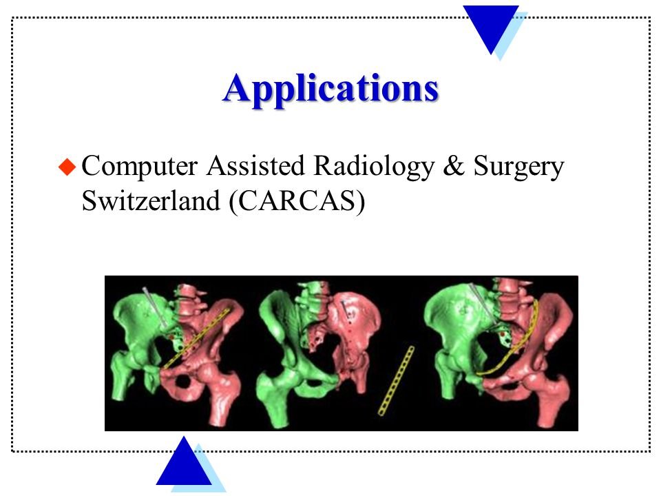 Applications u Computer Assisted Radiology & Surgery Switzerland (CARCAS)