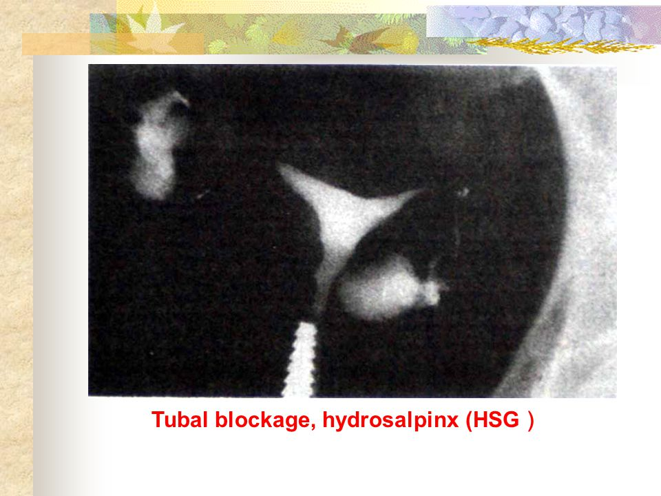Tubal blockage, hydrosalpinx (HSG )