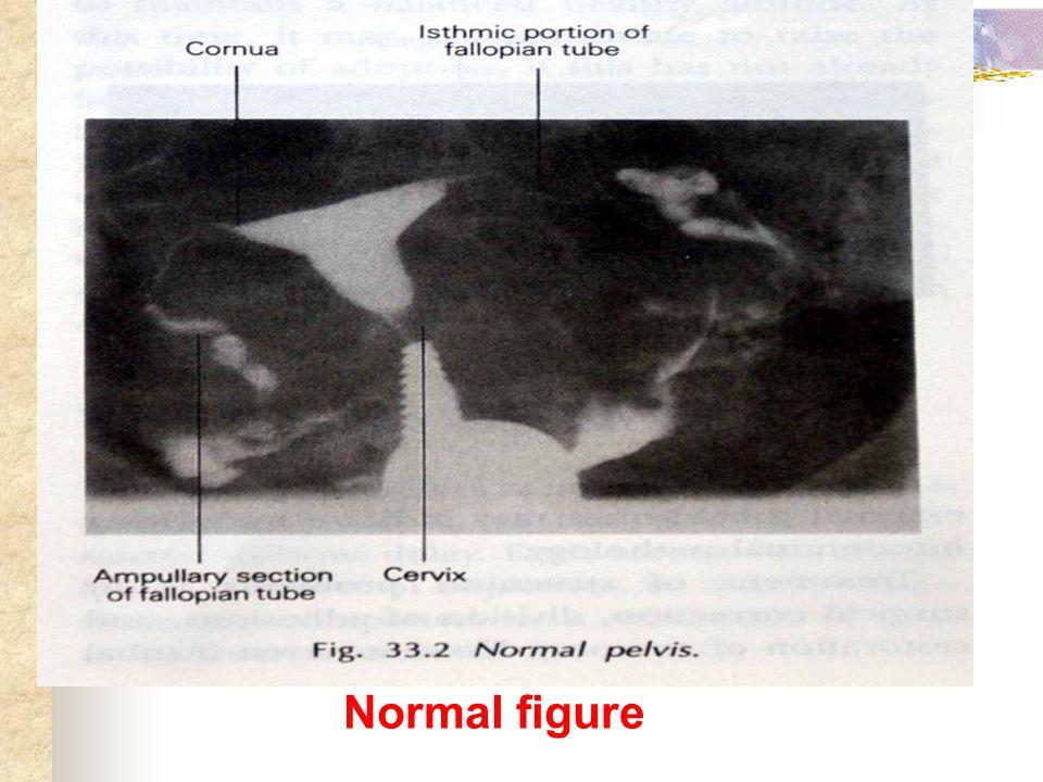 Normal figure