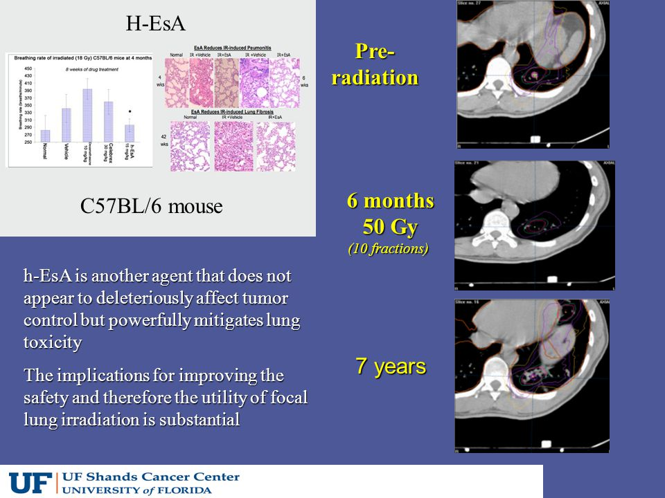 Pre-radiation 6 months 50 Gy (10 fractions) 7 years h-EsA is another agent that does not appear to deleteriously affect tumor control but powerfully mitigates lung toxicity The implications for improving the safety and therefore the utility of focal lung irradiation is substantial C57BL/6 mouse H-EsA