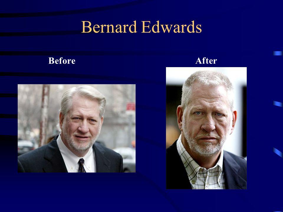 Bernard Edwards BeforeAfter