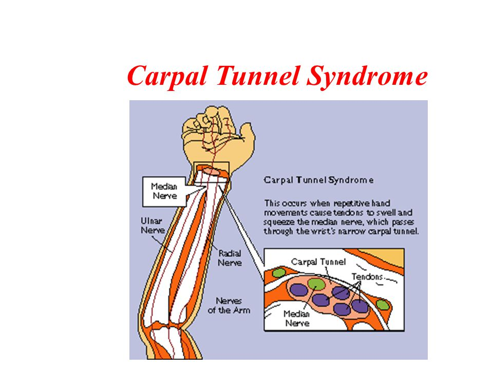 Health Issues Repetitive Stress Injuries (RSI) –Cumulative Trauma Disorder (CDT)/Typing Injury (TI) –Carpal Tunnel Syndrome Workstation Design Tendonitis
