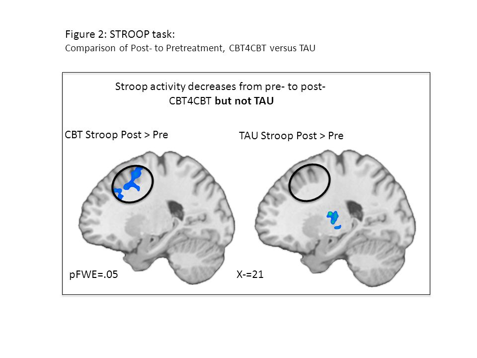 Figure 2: STROOP task: Comparison of Post- to Pretreatment, CBT4CBT versus TAU Stroop activity decreases from pre- to post- CBT4CBT but not TAU X-=21pFWE=.05 CBT Stroop Post > Pre TAU Stroop Post > Pre