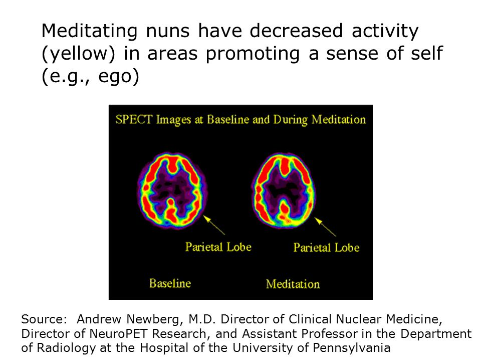 Meditating nuns have increased activity (red) in regions used for concentration Source: Andrew Newberg, M.D.