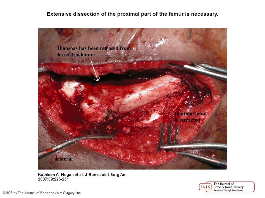 The osteotomy is performed.Kathleen A. Hogan et al.