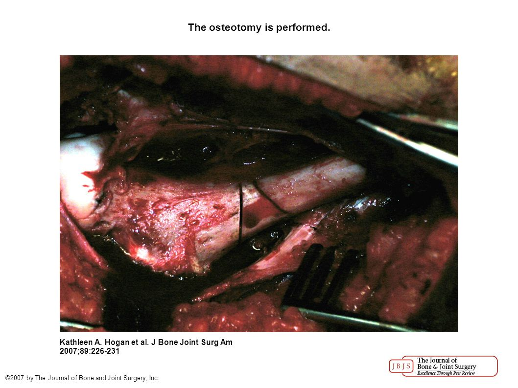 The osteotomy is performed. Kathleen A. Hogan et al.