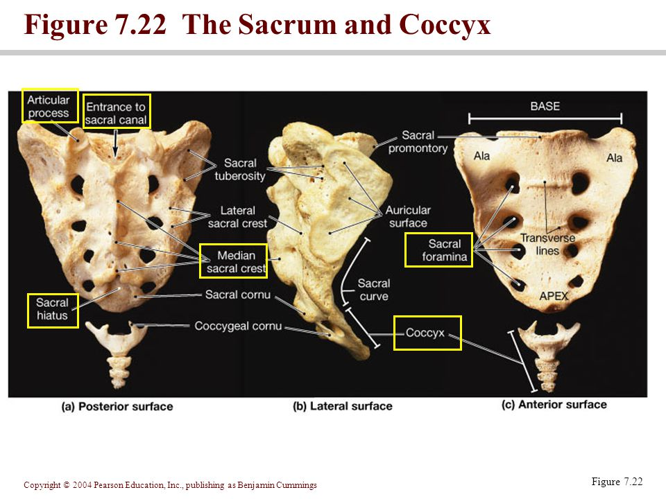 Copyright © 2004 Pearson Education, Inc., publishing as Benjamin Cummings Figure 7.22 The Sacrum and Coccyx Figure 7.22