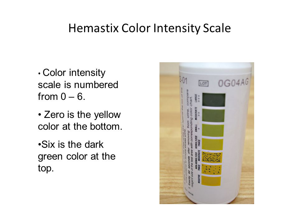 Hemastix Color Intensity Scale Color intensity scale is numbered from 0 – 6.