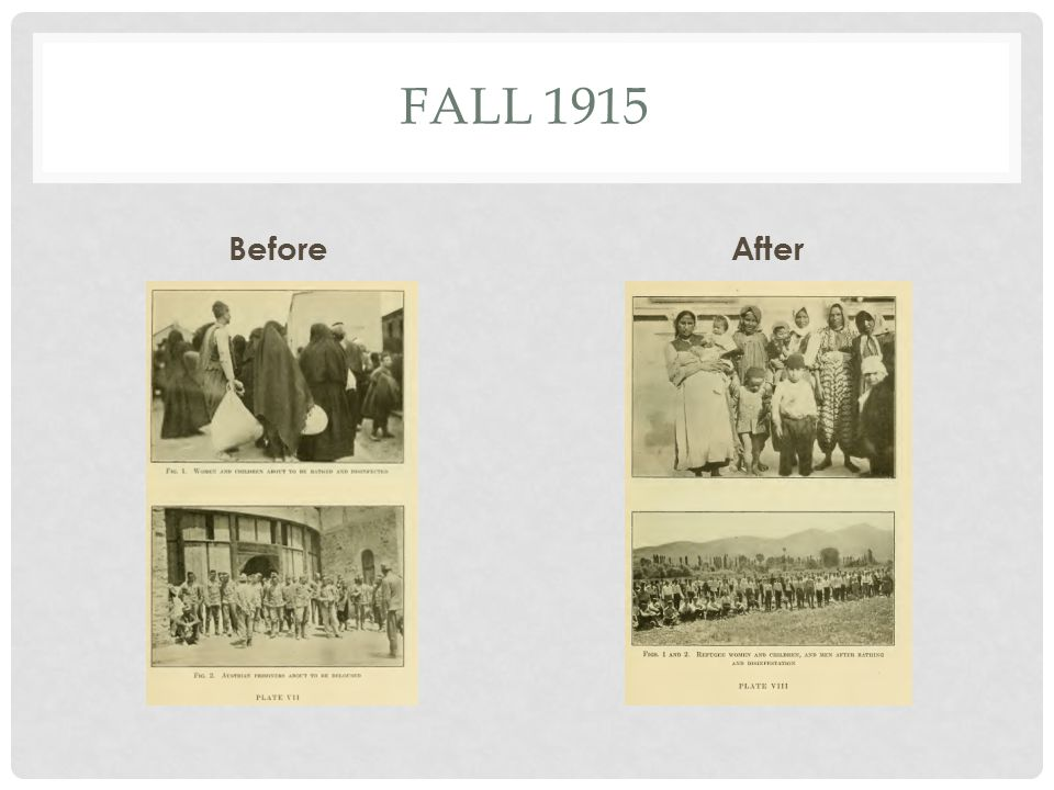 FALL 1915 BeforeAfter